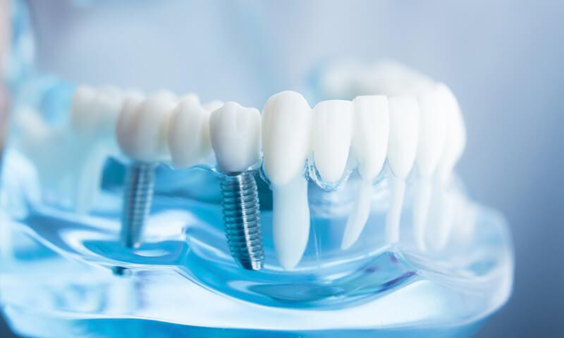 Zahnersatz - Zahnarztpraxis Dr. Barbara Meiser Saarbrücken